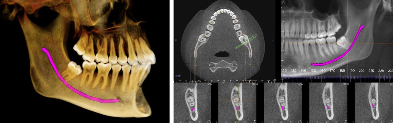 3D low-dose imaging for oral surgery in Allentown, Bethlehem and Lehighton PA