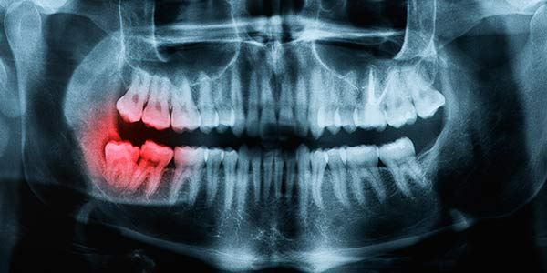 Wisdom Teeth Extraction Valley Oral Surgery